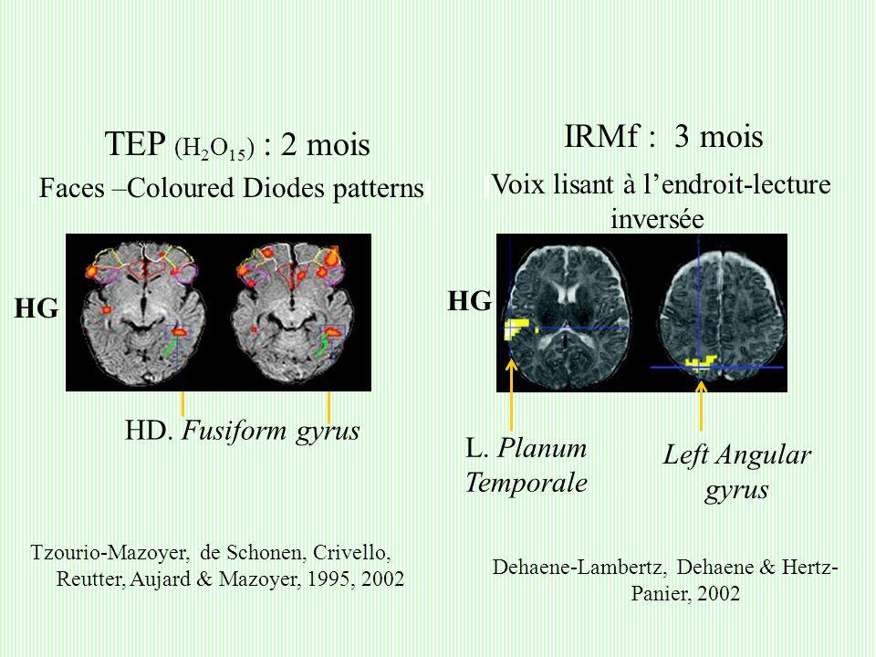 Tzourio-Mazoyer, de Schonen, Crivello, Reutter, Aujard & Mazoyer, 1995, 2002 Dehaene-Lambertz, Dehaene & Hertz- Panier, 2002 HD.