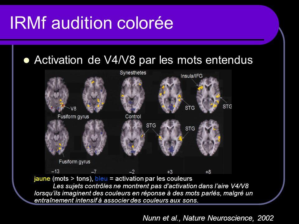 IRMf audition colorée Activation de V4/V8 par les mots entendus jaune (mots > tons), bleu = activation par les couleurs Les sujets contrôles ne montre