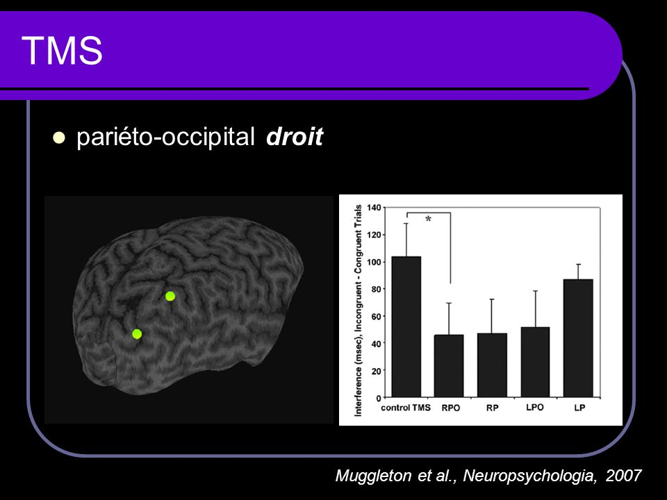 TMS pariéto-occipital droit Muggleton et al., Neuropsychologia, 2007