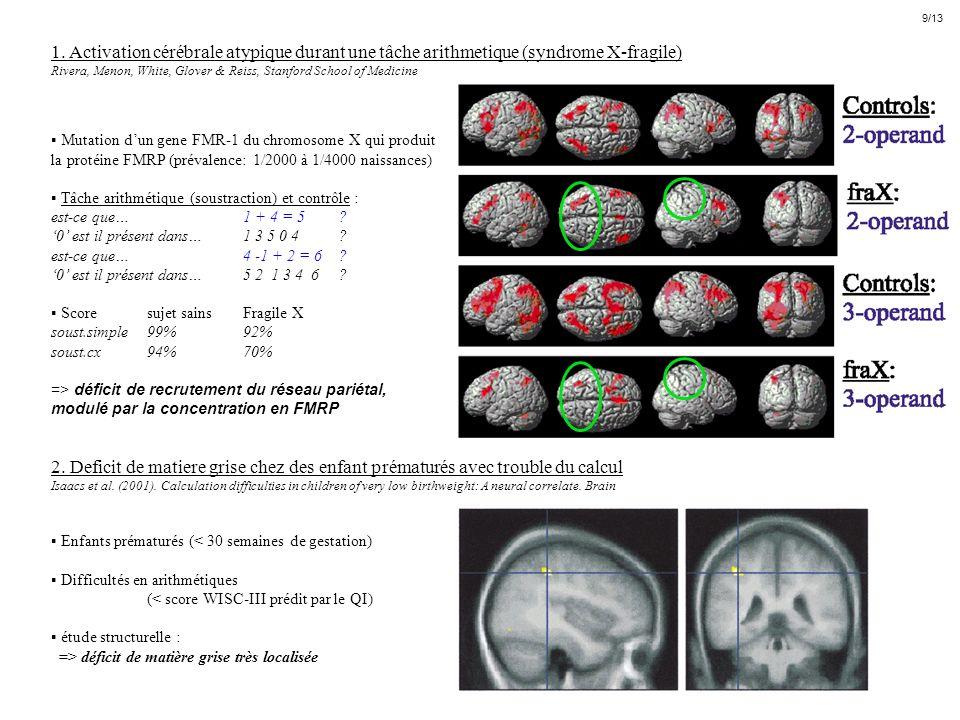 1. Activation cérébrale atypique durant une tâche arithmetique (syndrome X-fragile) Rivera, Menon, White, Glover & Reiss, Stanford School of Medicine