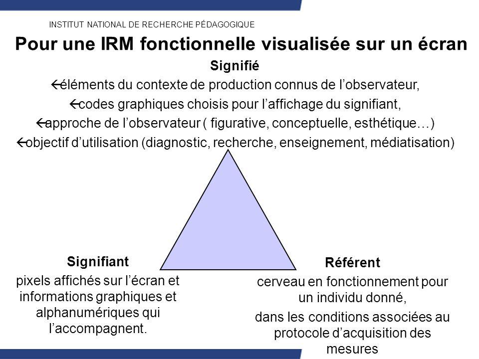INSTITUT NATIONAL DE RECHERCHE PÉDAGOGIQUE Pour une IRM fonctionnelle visualisée sur un écran Référent cerveau en fonctionnement pour un individu donn