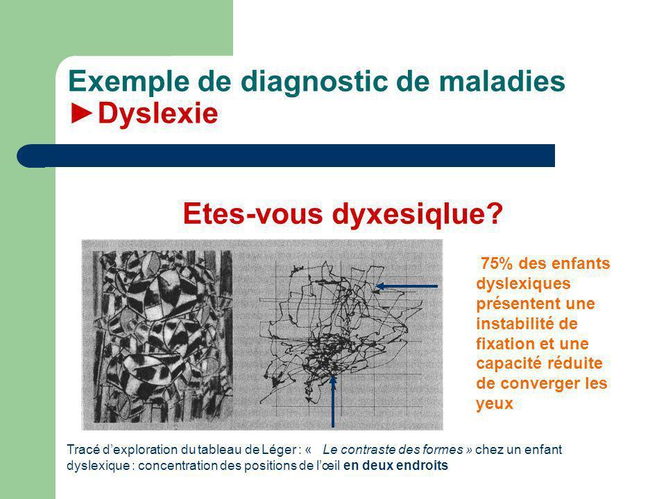Exemple de diagnostic de maladies Dyslexie 75% des enfants dyslexiques présentent une instabilité de fixation et une capacité réduite de converger les