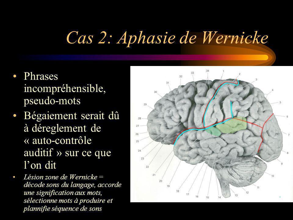 Cas 2: Aphasie de Wernicke Phrases incompréhensible, pseudo-mots Bégaiement serait dû à déreglement de « auto-contrôle auditif » sur ce que lon dit Lé