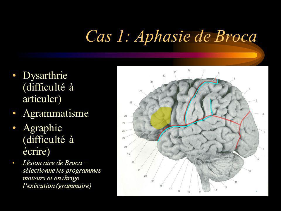 Cas 1: Aphasie de Broca Dysarthrie (difficulté à articuler) Agrammatisme Agraphie (difficulté à écrire) Lésion aire de Broca = sélectionne les program