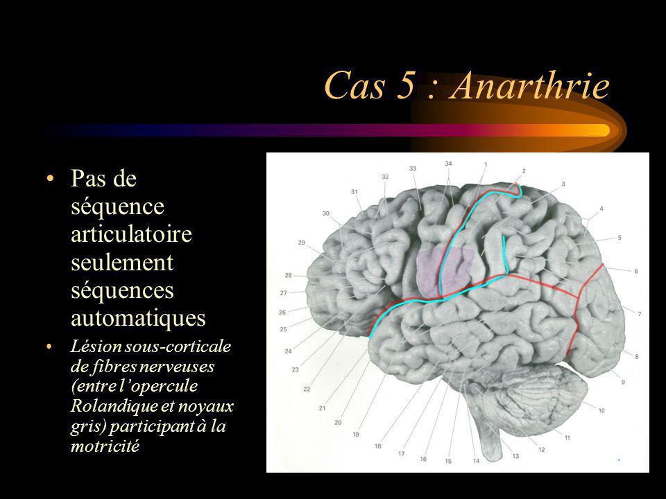 Cas 5 : Anarthrie Pas de séquence articulatoire seulement séquences automatiques Lésion sous-corticale de fibres nerveuses (entre lopercule Rolandique