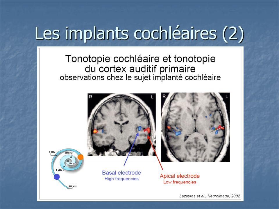 Les implants cochléaires (2)