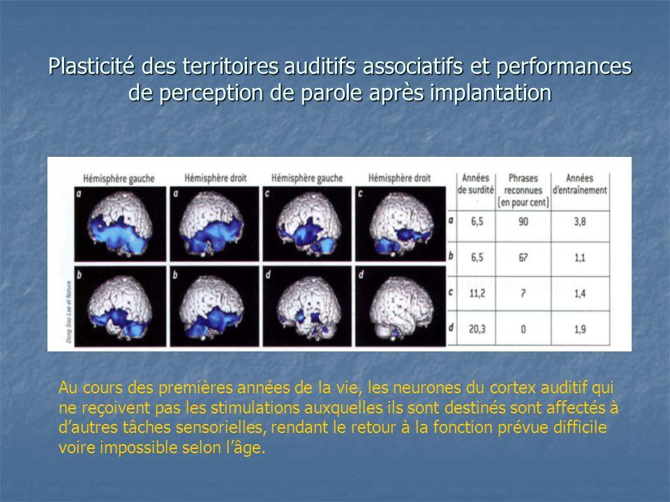 Plasticité des territoires auditifs associatifs et performances de perception de parole après implantation Au cours des premières années de la vie, le