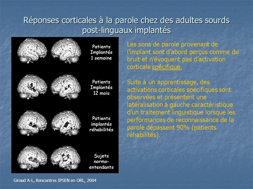Réponses corticales à la parole chez des adultes sourds post-linguaux implantés Giraud A-L, Rencontres IPSEN en ORL, 2004 Les sons de parole provenant
