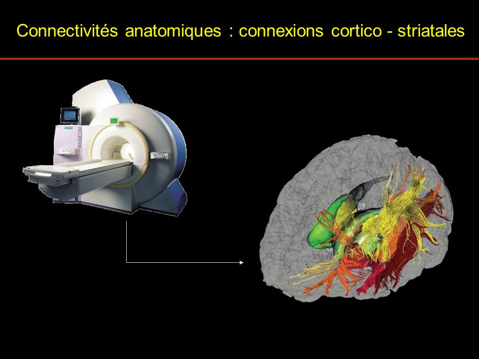 Connectivités anatomiques : connexions cortico - striatales