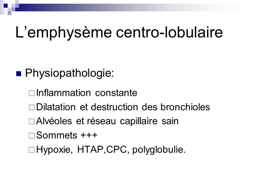 Lemphysème centro-lobulaire Physiopathologie: Inflammation constante Dilatation et destruction des bronchioles Alvéoles et réseau capillaire sain Somm