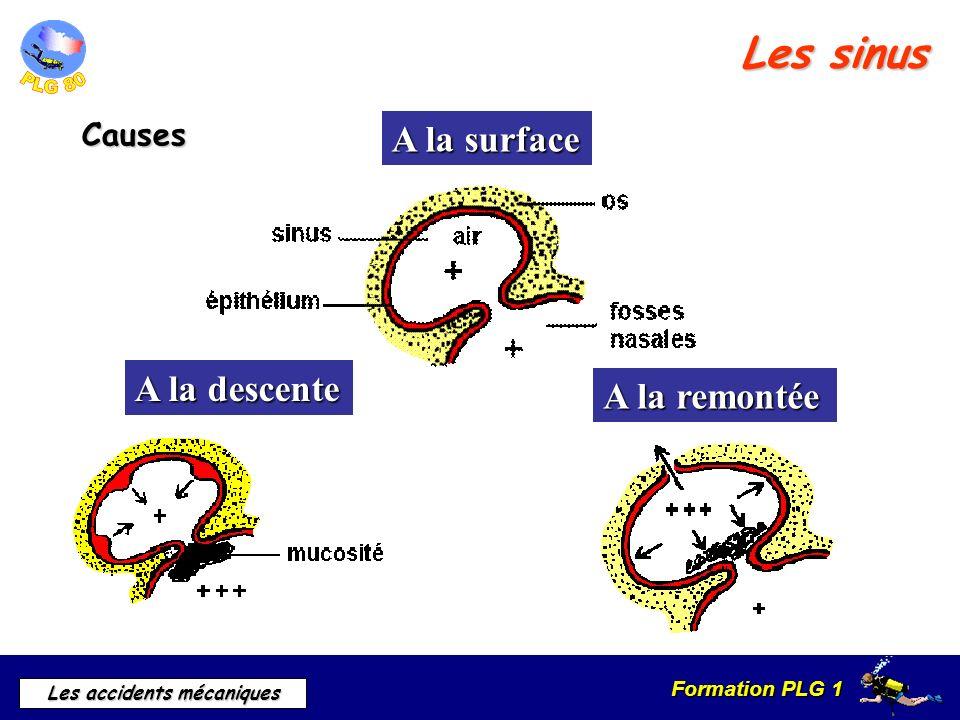 Formation PLG 1 Les accidents mécaniques Les sinus Causes A la surface A la descente A la remontée