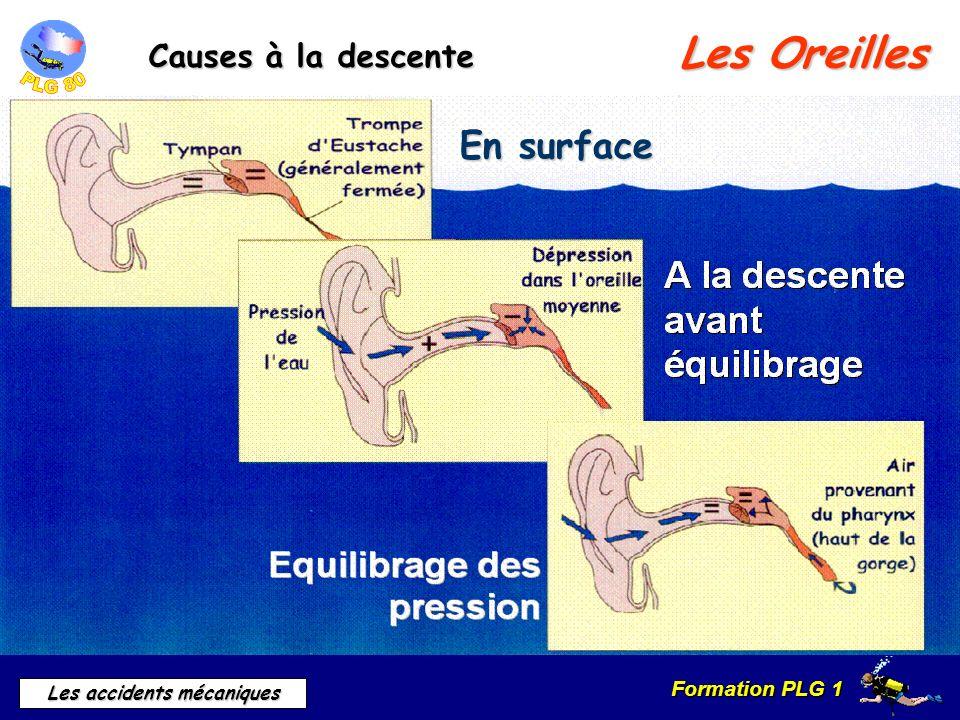 Formation PLG 1 Les accidents mécaniques Les Oreilles Causes à la descente En surface