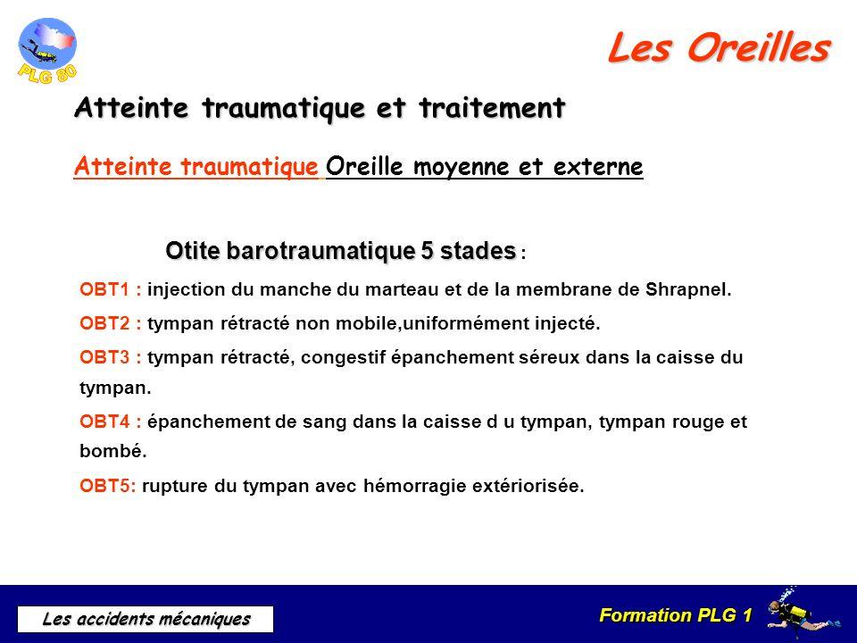 Formation PLG 1 Les accidents mécaniques Les Oreilles Atteinte traumatique et traitement Atteinte traumatique Oreille moyenne et externe Otite barotra