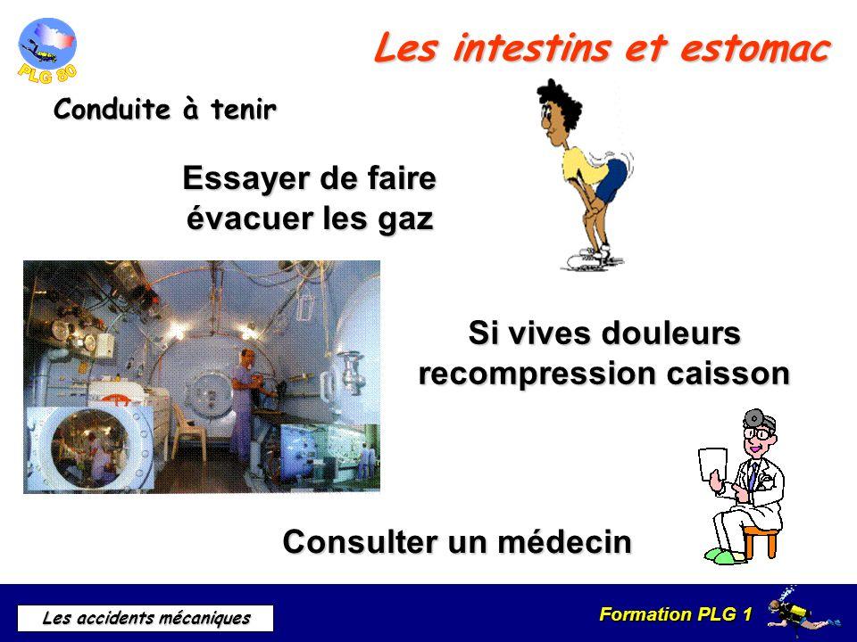 Formation PLG 1 Les accidents mécaniques Les intestins et estomac Conduite à tenir Essayer de faire évacuer les gaz Consulter un médecin Si vives doul