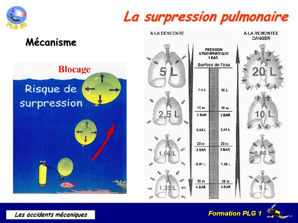 Formation PLG 1 Les accidents mécaniques La surpression pulmonaire Mécanisme