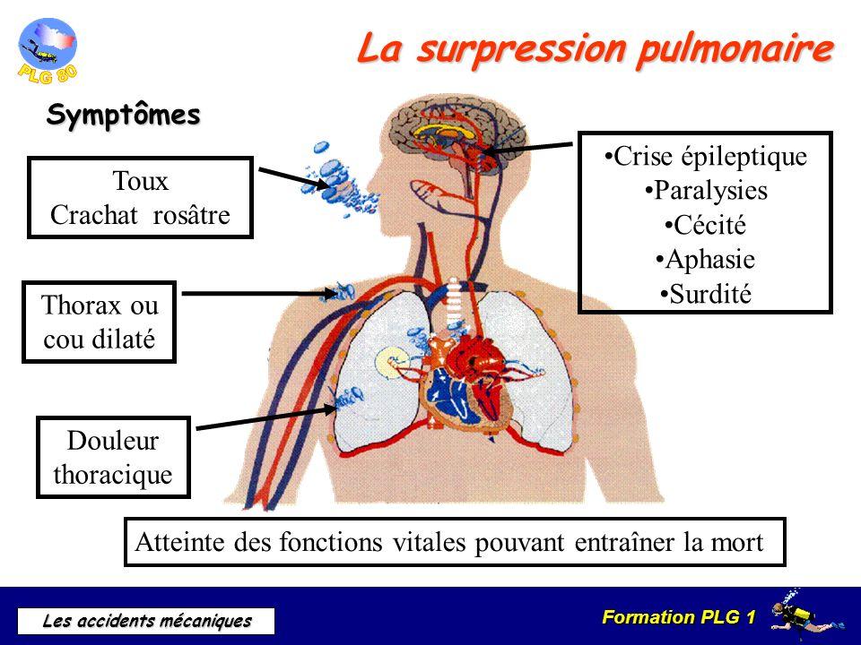 Formation PLG 1 Les accidents mécaniques La surpression pulmonaire Symptômes Douleur thoracique Toux Crachat rosâtre Crise épileptique Paralysies Céci
