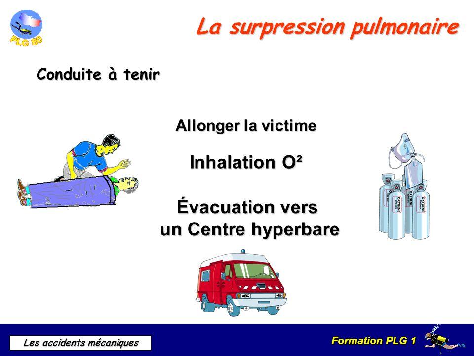 Formation PLG 1 Les accidents mécaniques La surpression pulmonaire Conduite à tenir Allonger la victime Inhalation O² Évacuation vers un Centre hyperb