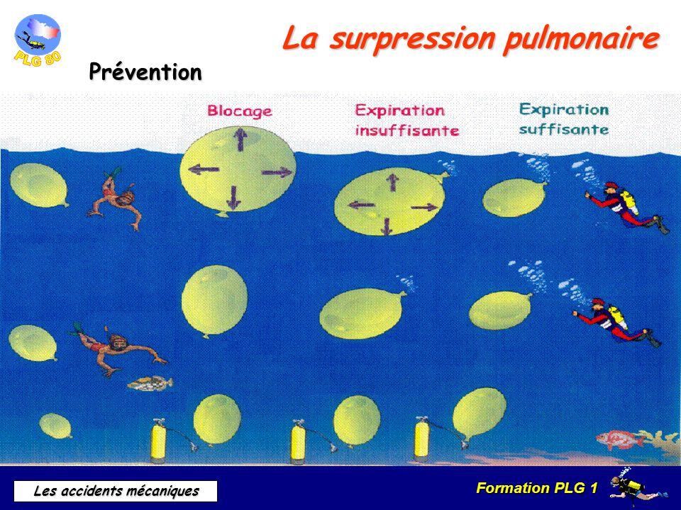 Formation PLG 1 Les accidents mécaniques La surpression pulmonaire Prévention Prévention