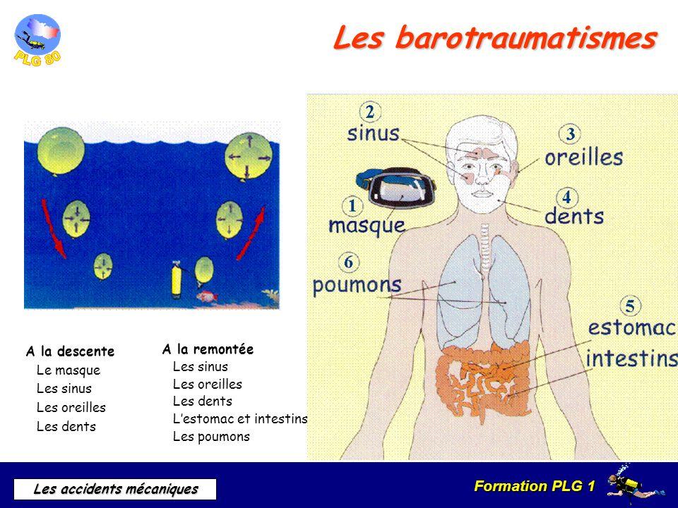 Formation PLG 1 Les accidents mécaniques Les barotraumatismes A la remontée Les sinus Les oreilles Les dents Lestomac et intestins Les poumons A la de