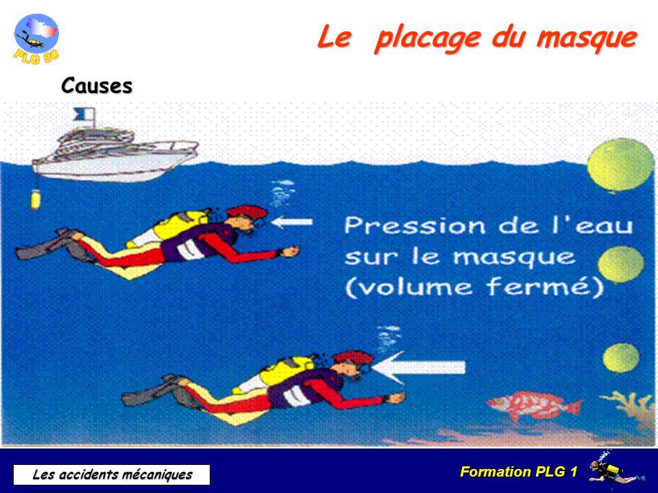 Formation PLG 1 Les accidents mécaniques Le placage du masque Symptômes Douleurs Yeux rouge Œil au beurre noir Saignement de nez
