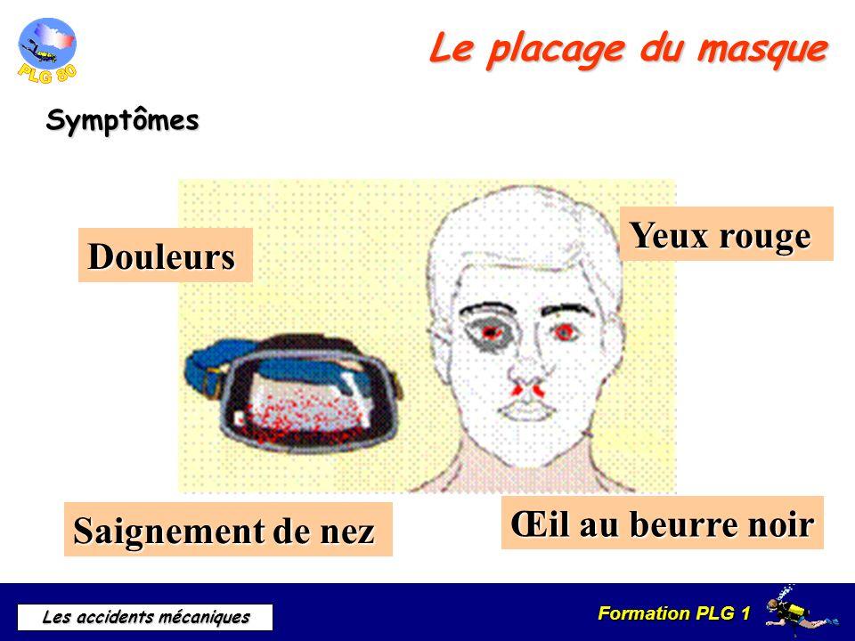 Formation PLG 1 Les accidents mécaniques Le plaquage du masque Conduite à tenir Consulter Si saignement de nez