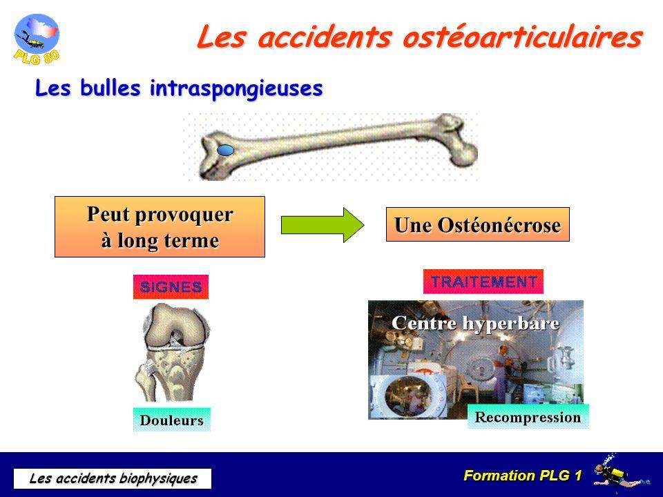 Formation PLG 1 Les accidents biophysiques Les accidents ostéoarticulaires Les bulles intraspongieuses Peut provoquer à long terme Une Ostéonécrose