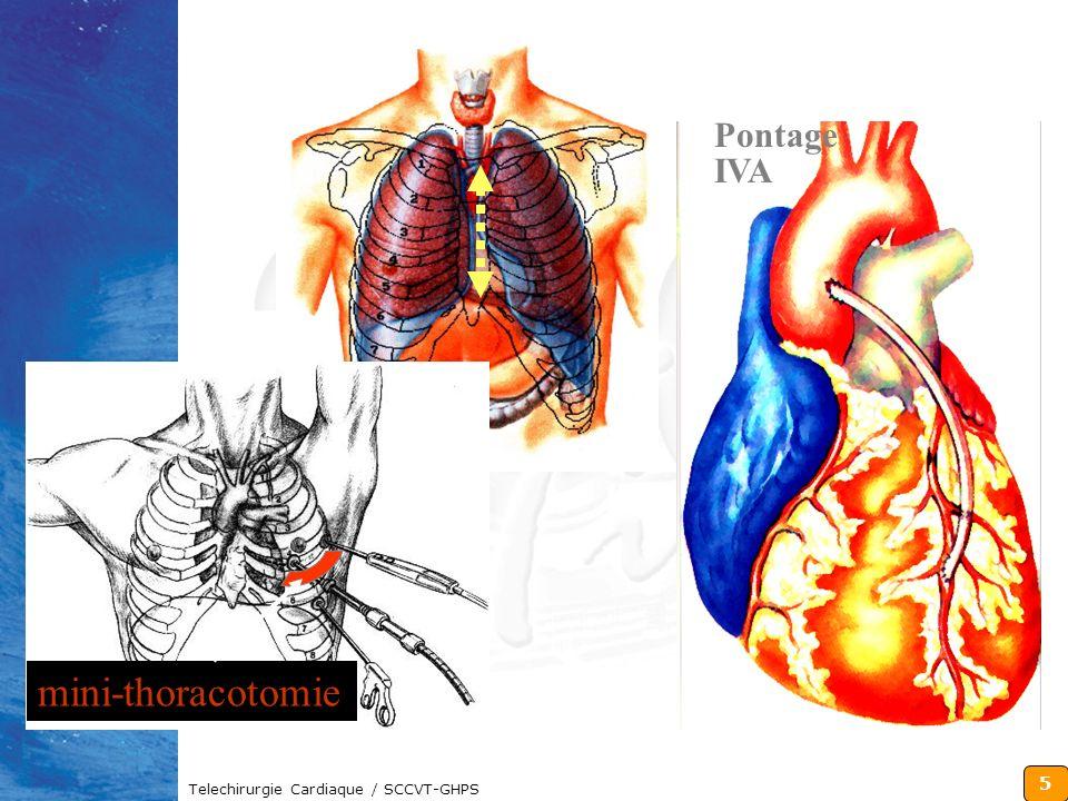 6 Telechirurgie Cardiaque / SCCVT-GHPS trocart Endoscopie Manuelle