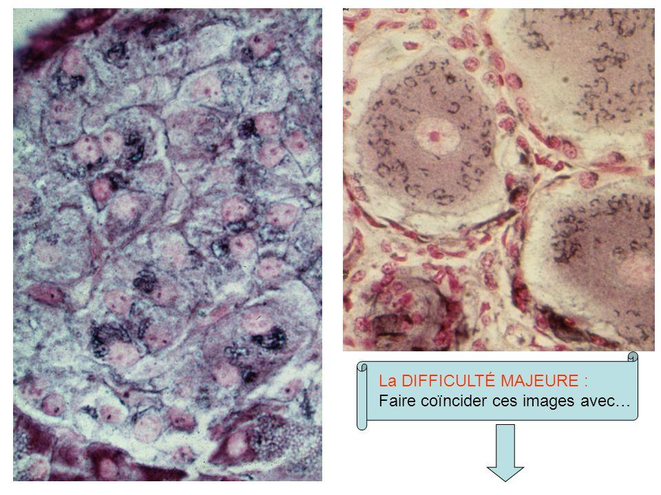 Microscopie électronique dun appareil de Golgi (cellule C thyroïdienne) Ça …