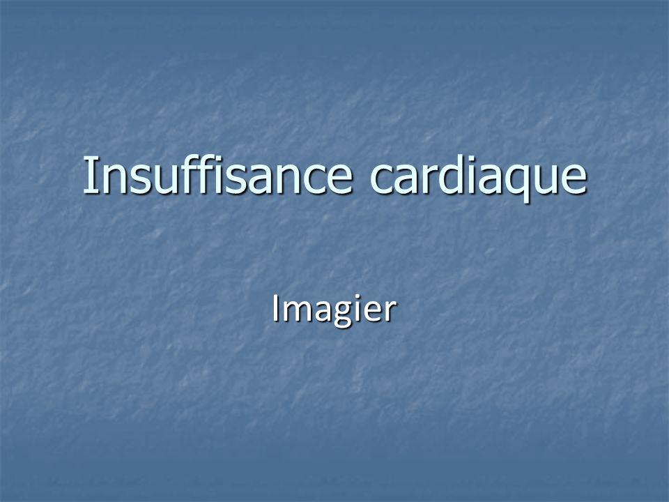 Insuffisance cardiaque Imagier