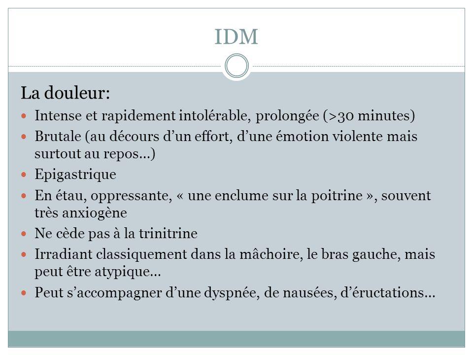 IDM La douleur: Intense et rapidement intolérable, prolongée (>30 minutes) Brutale (au décours dun effort, dune émotion violente mais surtout au repos