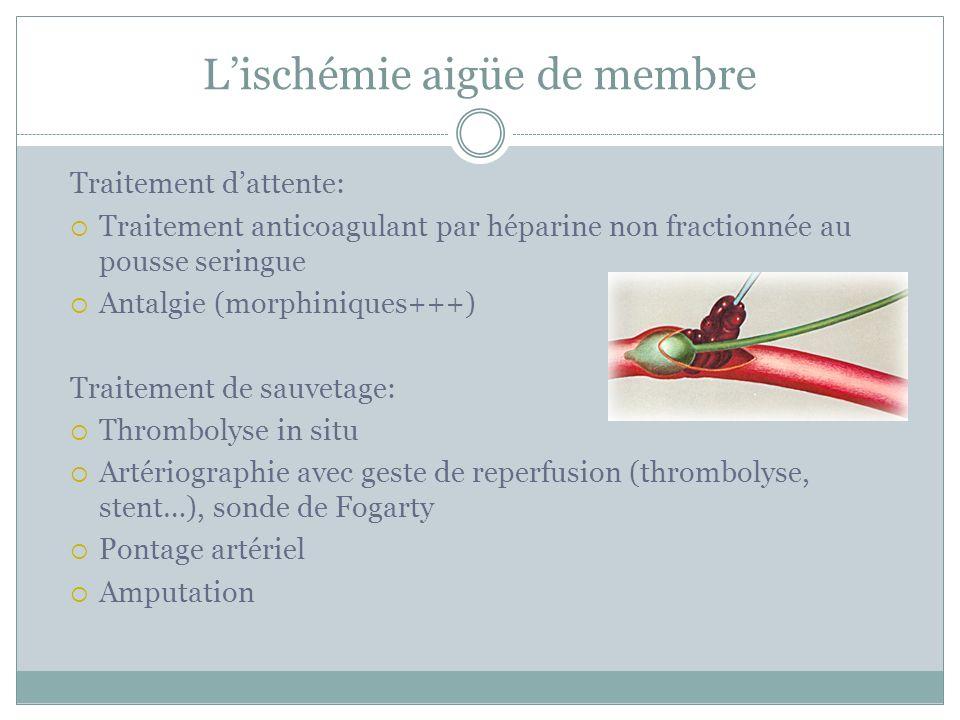 Lischémie aigüe de membre Traitement dattente: Traitement anticoagulant par héparine non fractionnée au pousse seringue Antalgie (morphiniques+++) Tra