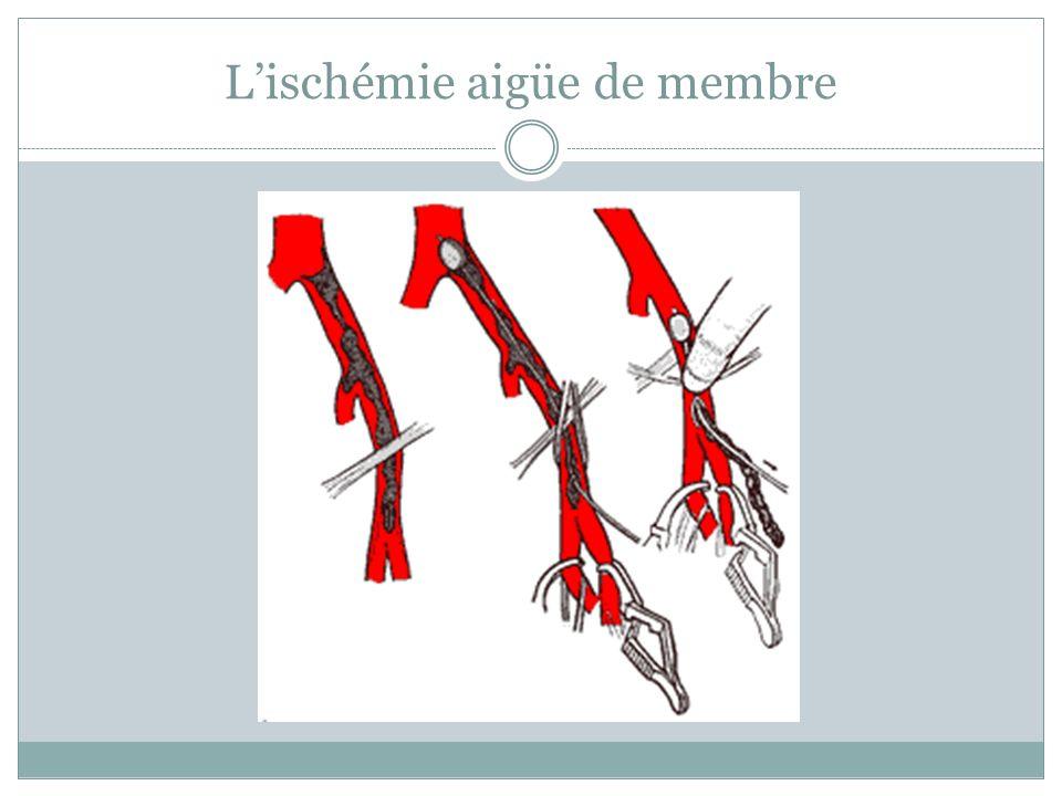 Lischémie aigüe de membre