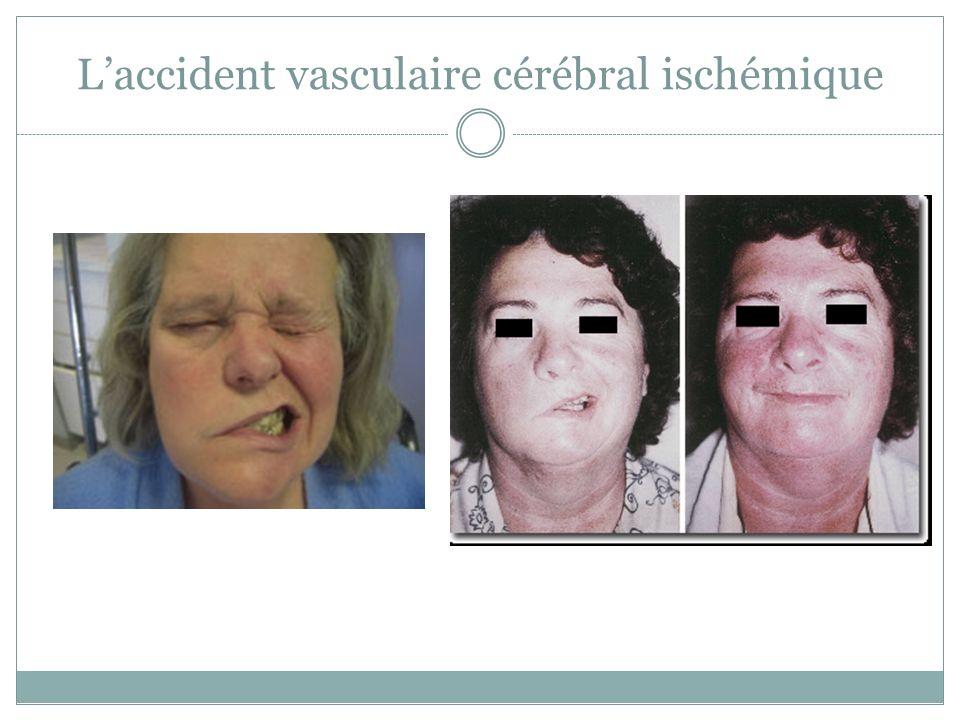 Laccident vasculaire cérébral ischémique
