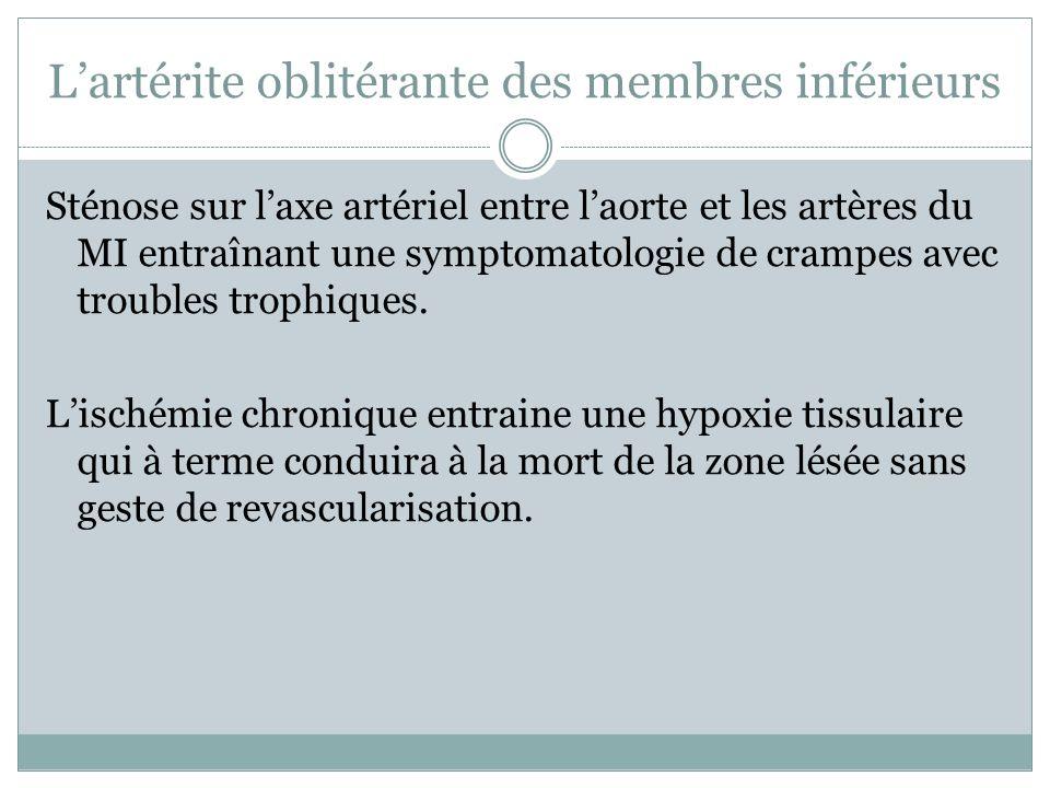 Lartérite oblitérante des membres inférieurs Sténose sur laxe artériel entre laorte et les artères du MI entraînant une symptomatologie de crampes ave