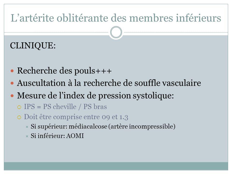 Lartérite oblitérante des membres inférieurs CLINIQUE: Recherche des pouls+++ Auscultation à la recherche de souffle vasculaire Mesure de lindex de pr