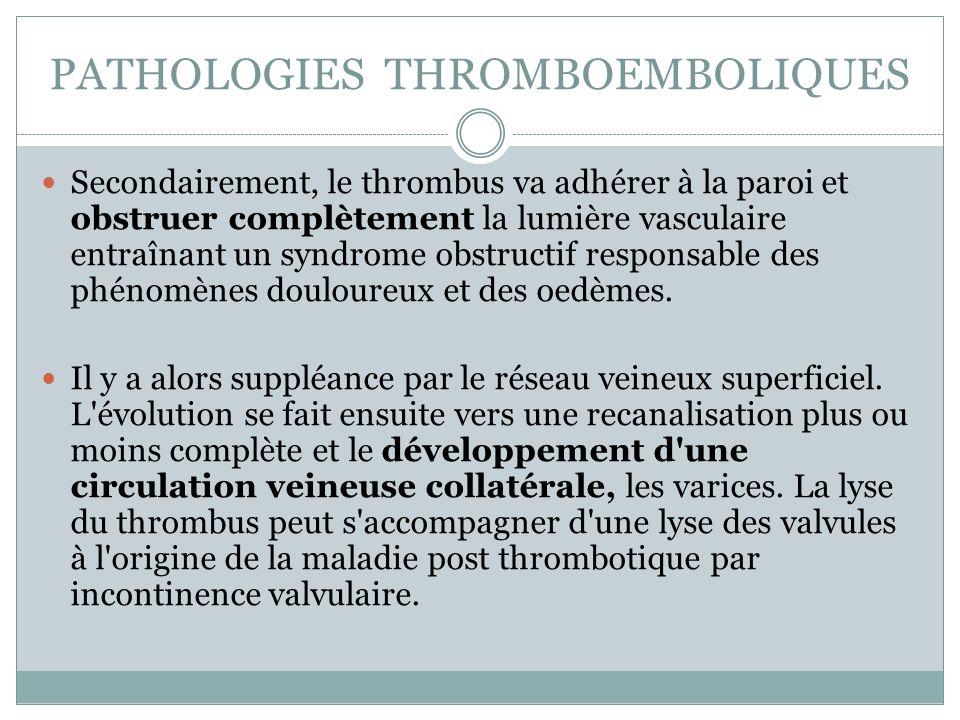 PATHOLOGIES THROMBOEMBOLIQUES Secondairement, le thrombus va adhérer à la paroi et obstruer complètement la lumière vasculaire entraînant un syndrome