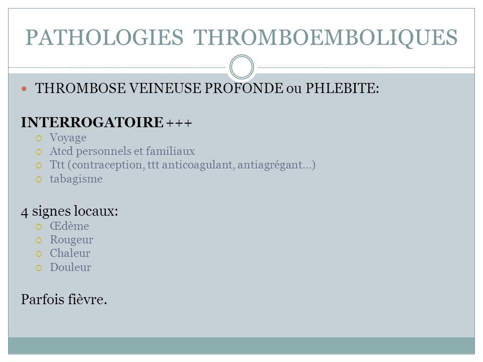 PATHOLOGIES THROMBOEMBOLIQUES THROMBOSE VEINEUSE PROFONDE ou PHLEBITE: INTERROGATOIRE+++ Voyage Atcd personnels et familiaux Ttt (contraception, ttt a