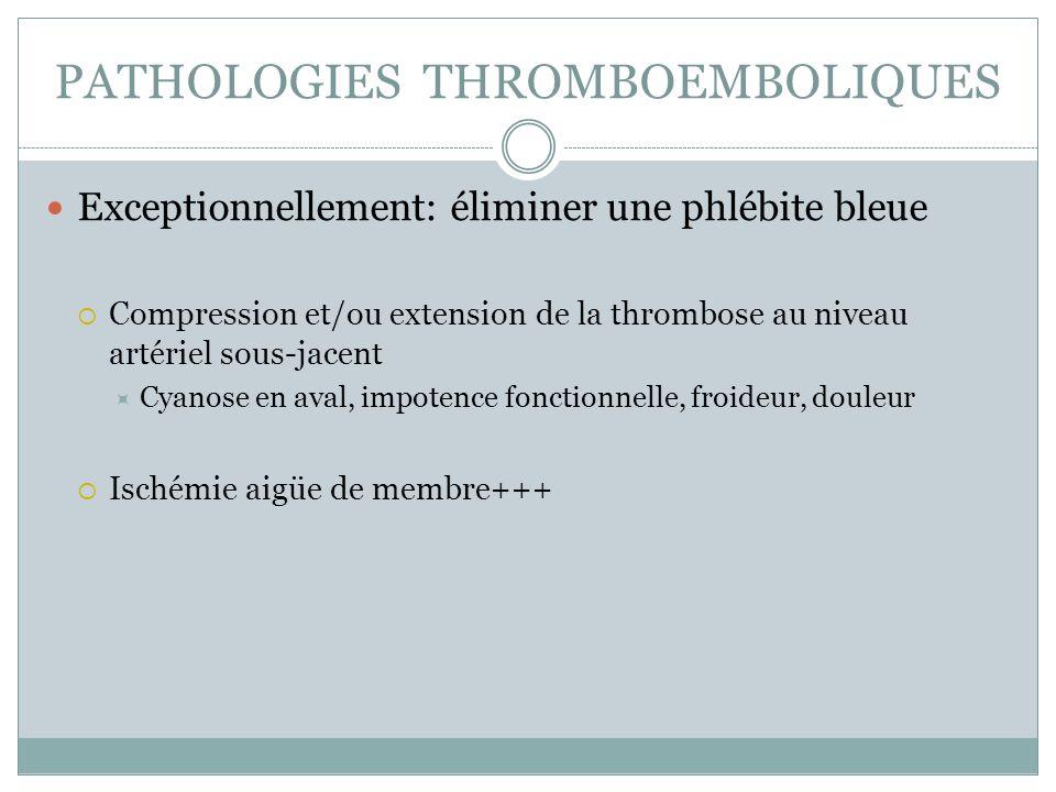 PATHOLOGIES THROMBOEMBOLIQUES Exceptionnellement: éliminer une phlébite bleue Compression et/ou extension de la thrombose au niveau artériel sous-jacent Cyanose en aval, impotence fonctionnelle, froideur, douleur Ischémie aigüe de membre+++