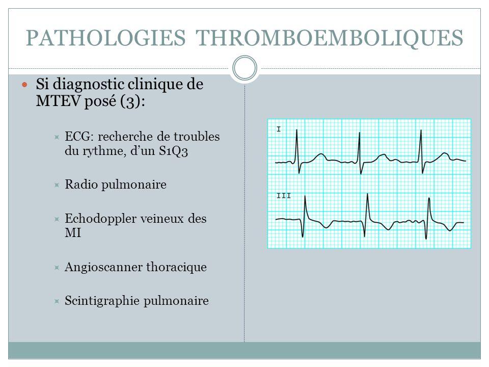 PATHOLOGIES THROMBOEMBOLIQUES Si diagnostic clinique de MTEV posé (3): ECG: recherche de troubles du rythme, dun S1Q3 Radio pulmonaire Echodoppler veineux des MI Angioscanner thoracique Scintigraphie pulmonaire