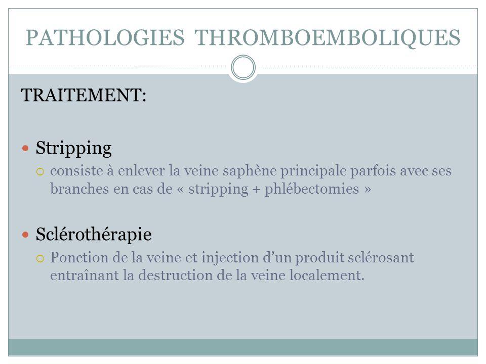 PATHOLOGIES THROMBOEMBOLIQUES TRAITEMENT: Stripping consiste à enlever la veine saphène principale parfois avec ses branches en cas de « stripping + p