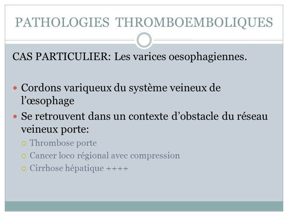 PATHOLOGIES THROMBOEMBOLIQUES CAS PARTICULIER: Les varices oesophagiennes. Cordons variqueux du système veineux de lœsophage Se retrouvent dans un con