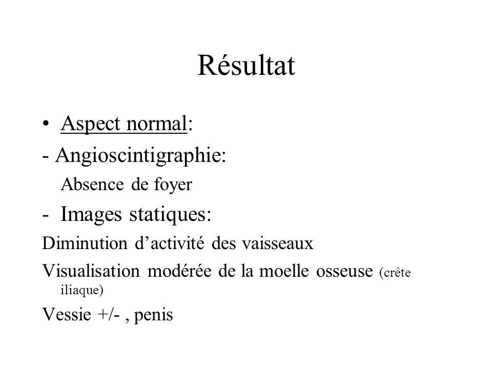 Résultat Aspect normal: - Angioscintigraphie: Absence de foyer -Images statiques: Diminution dactivité des vaisseaux Visualisation modérée de la moelle osseuse (crête iliaque) Vessie +/-, penis