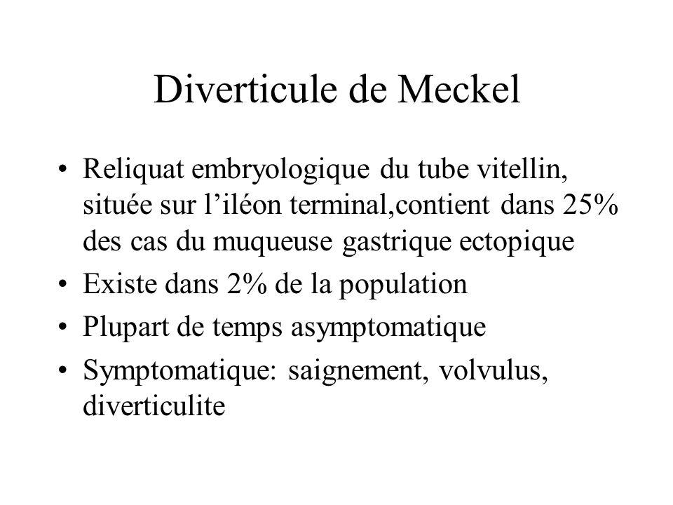 Diverticule de Meckel Reliquat embryologique du tube vitellin, située sur liléon terminal,contient dans 25% des cas du muqueuse gastrique ectopique Existe dans 2% de la population Plupart de temps asymptomatique Symptomatique: saignement, volvulus, diverticulite