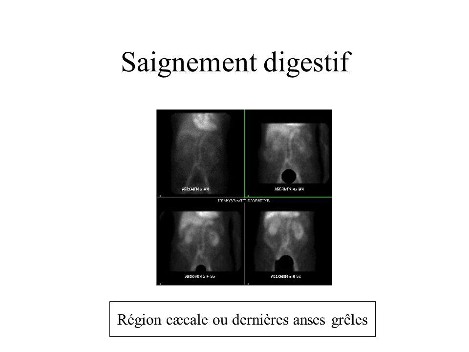 Saignement digestif Région cæcale ou dernières anses grêles
