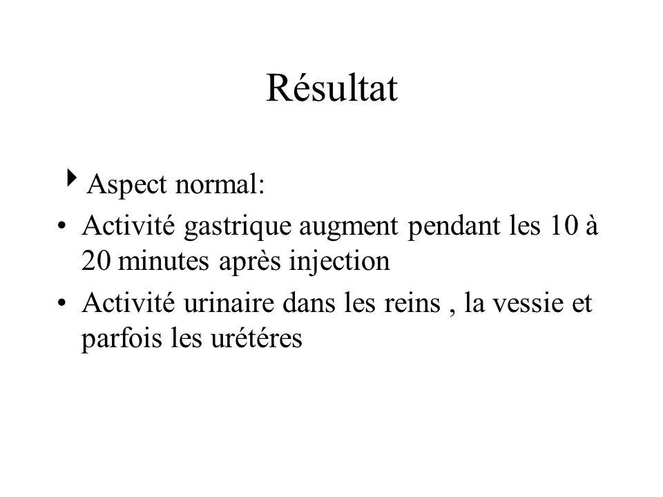 Résultat Aspect normal: Activité gastrique augment pendant les 10 à 20 minutes après injection Activité urinaire dans les reins, la vessie et parfois les urétéres
