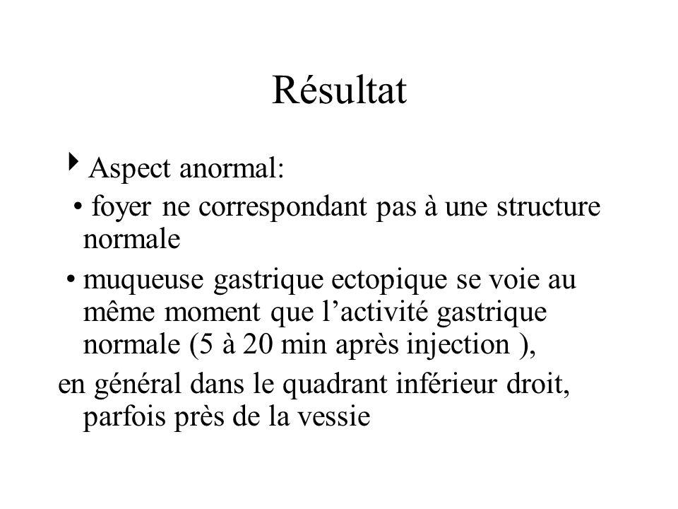 Résultat Aspect anormal: foyer ne correspondant pas à une structure normale muqueuse gastrique ectopique se voie au même moment que lactivité gastrique normale (5 à 20 min après injection ), en général dans le quadrant inférieur droit, parfois près de la vessie