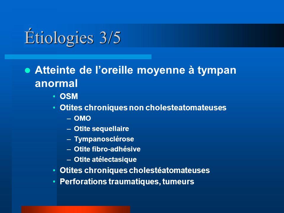 Étiologies 3/5 Atteinte de loreille moyenne à tympan anormal OSM Otites chroniques non cholesteatomateuses –OMO –Otite sequellaire –Tympanosclérose –O