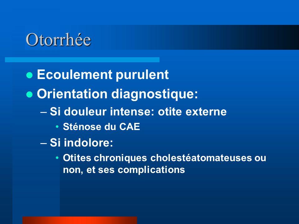 Otorrhée Ecoulement purulent Orientation diagnostique: –Si douleur intense: otite externe Sténose du CAE –Si indolore: Otites chroniques cholestéatoma