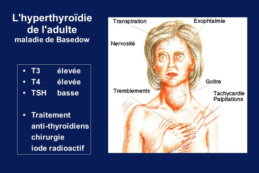 L'hyperthyroïdie de l'adulte maladie de Basedow T3élevée T4 élevée TSHbasse Traitement anti-thyroïdiens chirurgie iode radioactif