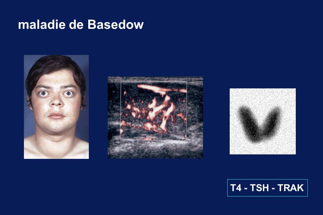 L hypothyroïdie de l adulte T3basse T4 basse TSHélevée Traitement par LT4